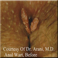 Can anal warts cause cancer, pinky porn star naked pics