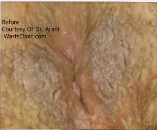 Do i have anal warts